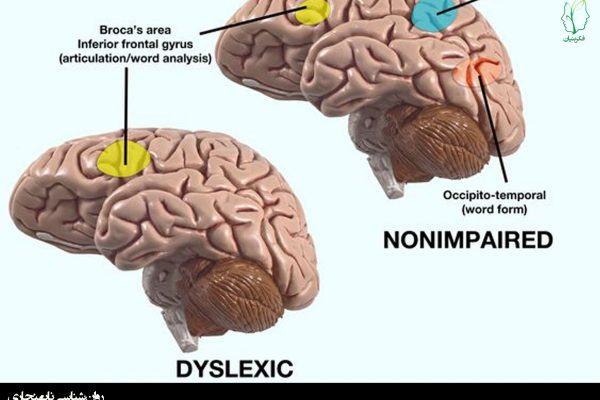 نارساخوانی و مغز