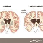 اختلال عصبی-شناختی عمده یا خفیف ناشی بیماری هانتینگتون (Major or Mild Neurocognitive Disorder Due to Huntington's Disease)
