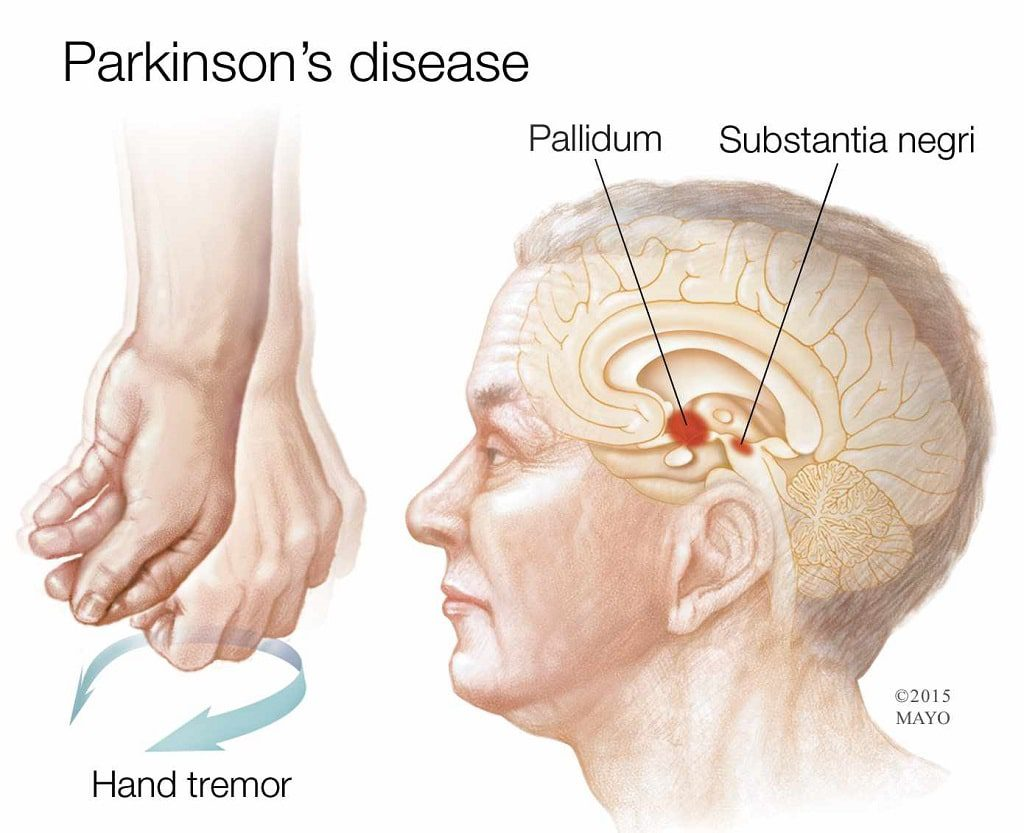 بیماری پارکینسون در اثر تخریب در مادهی سیاه مغز ایجاد میشود