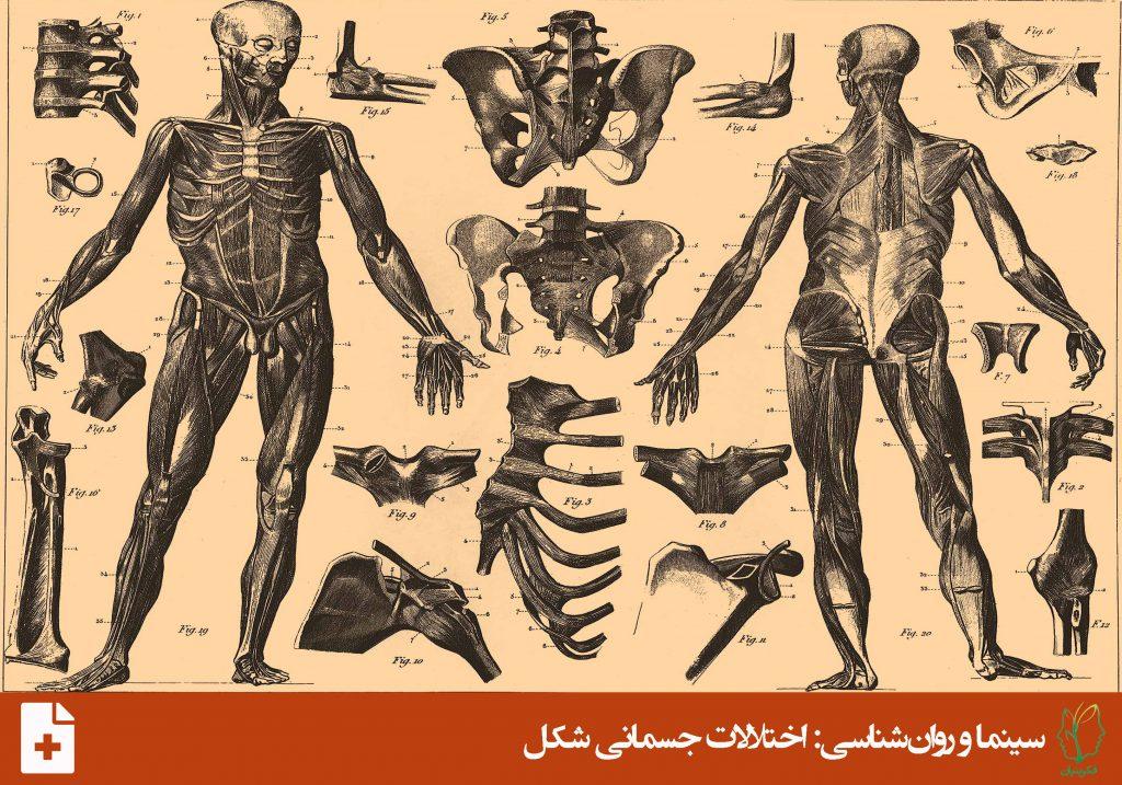 اختلال نشانه جسمانی (Somatic Symptom Disorder)