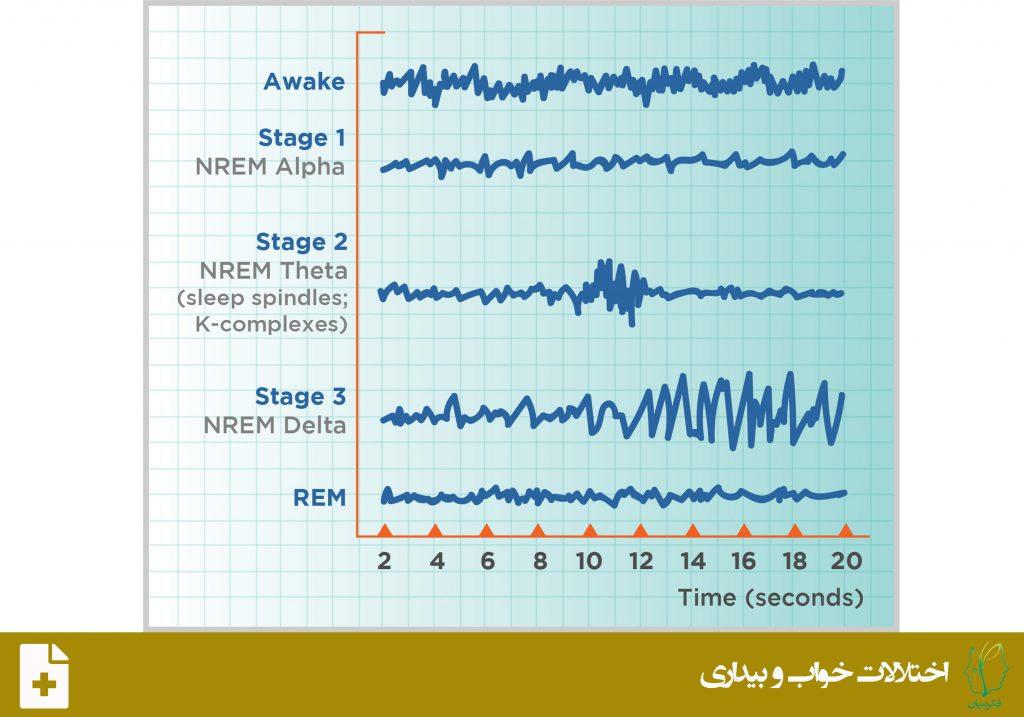 اختلالات برانگیختگی خواب بدون حرکت سریع چشم (Non-Rapid Eye Movment Sleep Arousal Disorder)