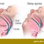تنفس سطحی وقفه ی تنفسی انسدادی در خواب