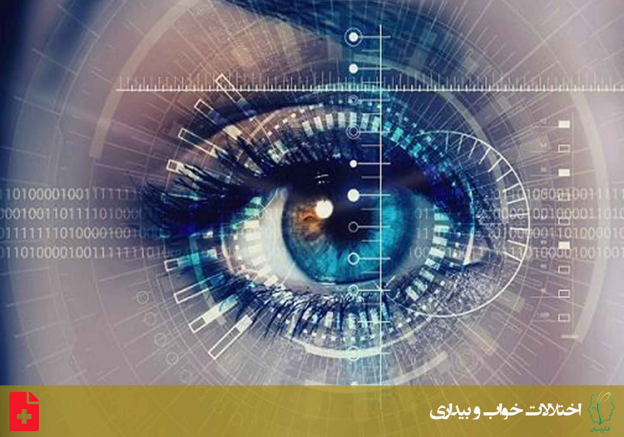 اختلال رفتار خواب با حرکت سریع چشم
