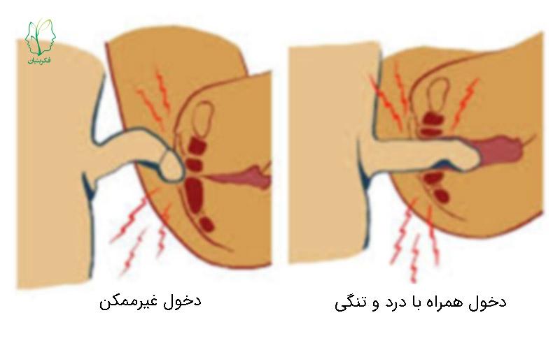 اختلال دخول / درد تناسلی – لگنی یا واژینیسموس