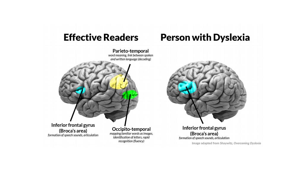 ناهنجاری در منطقه پشتی زبان در لوب پیشانی در افراد مبتلا به اختلالات یادگیری خاص
