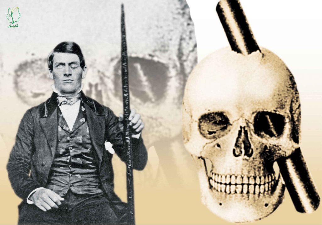 فینیاس گیج، مردی با یک سوراخ در سر